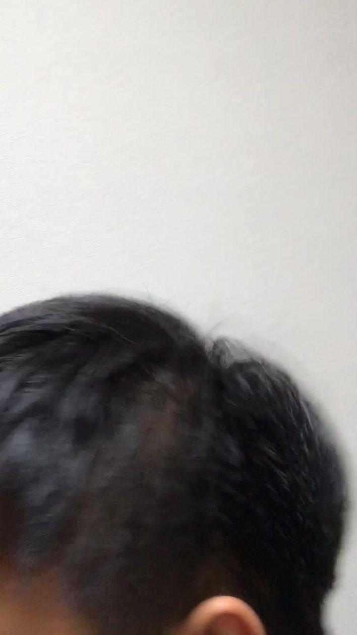 薄い 部 側 頭