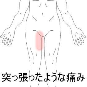 大腿部の痛み
