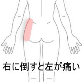 バトントワリング腰痛