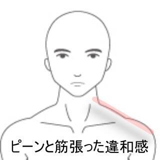 首のね違い