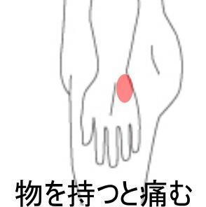 薬指の痛み