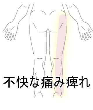 脚の痺れ・痛み