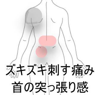 腰痛 首の痛み