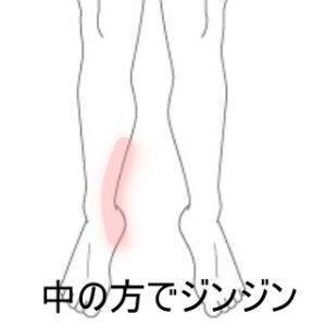 三角骨障害