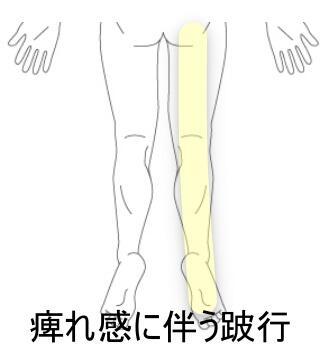 腰椎椎間板ヘルニア1