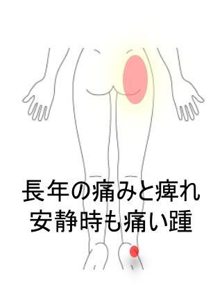 股関節の不調