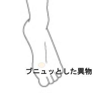 足指の痛み