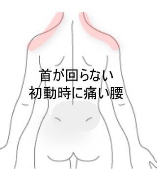首と腰の痛み