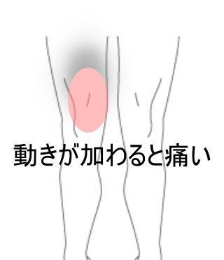 膝の動き痛い