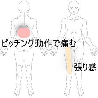 大腿部張り感