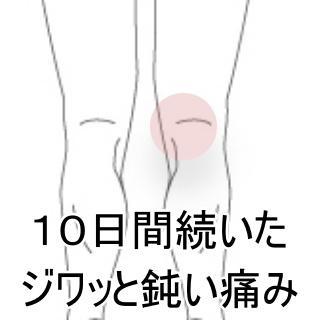 1月鈍い膝の痛み