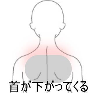 首下がり症候群