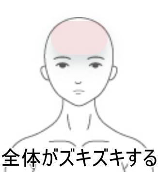 妊産婦の頭痛
