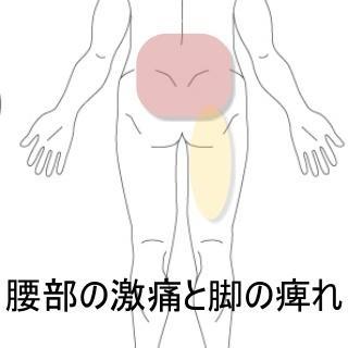 腰部の激痛と脚の痺れ