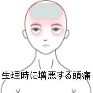 生理時に増悪する頭痛