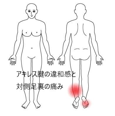 アキレス腱の違和感と対側