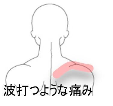 波打つ肩の痛み