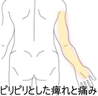 痺れ・痛み 1