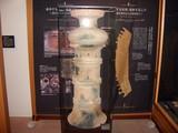 「津島遺跡」特殊器台
