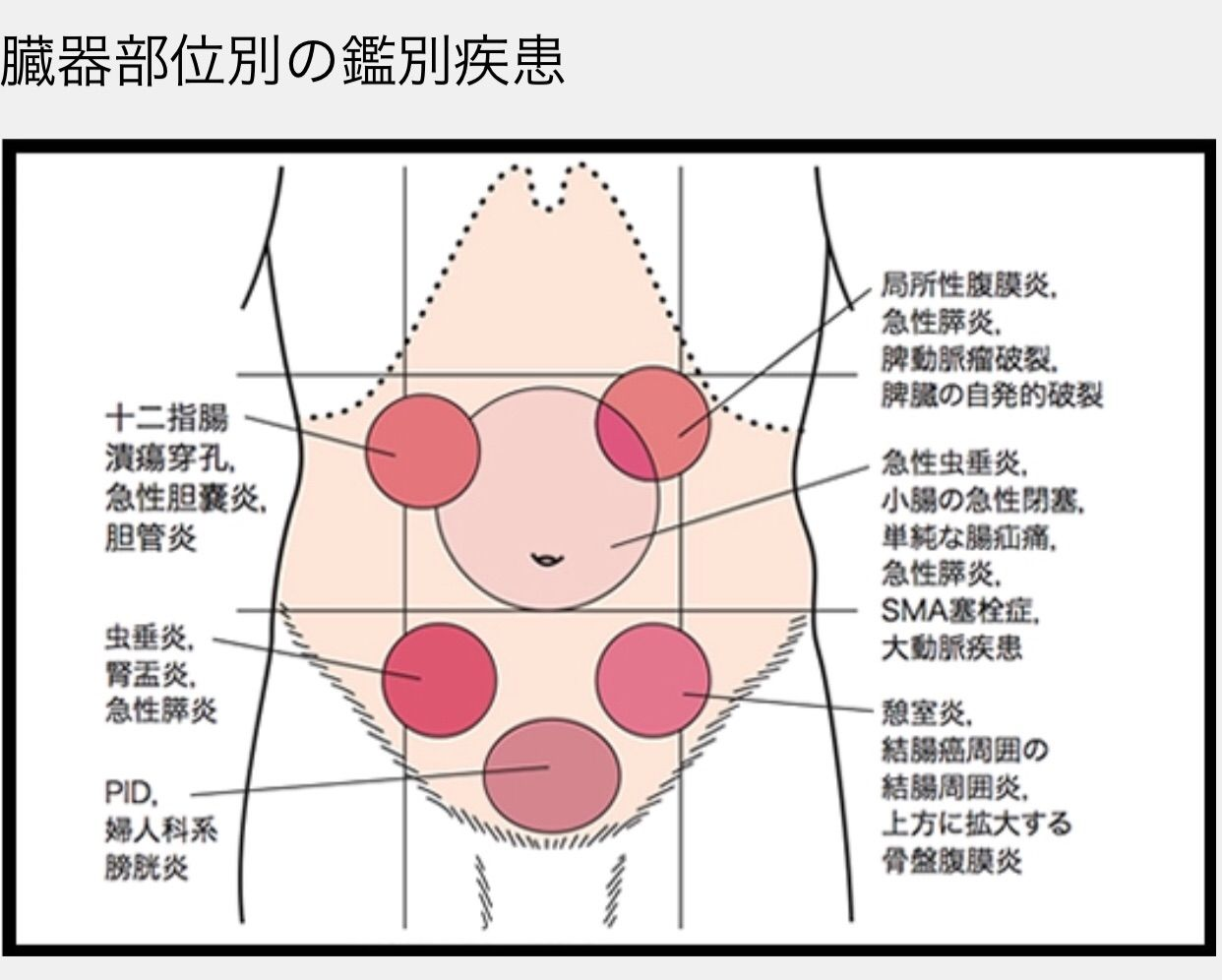 その腹痛の原因は・・・ : 墨俣医院 公式ブログ