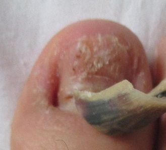 爪が根元から剥がれる原因と、新型手足口 ...