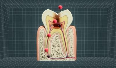 幹細胞を使った虫歯治療