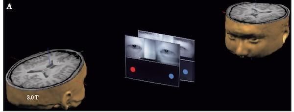 2個人同時計測MRI研究
