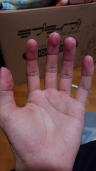 なんか最近指の皮がボロボロ剥がれるんやが…(※画像あり)