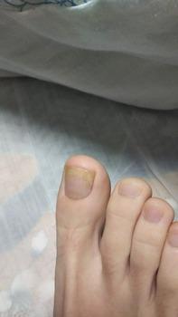 最近足の爪の色がおかしいんやけど病気か?(※画像あり)