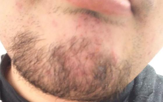 わいのセクシーなアゴ髭www(※画像あり)