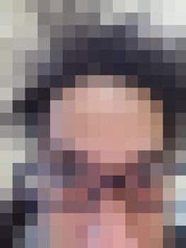 【悲報】ワイ将、禿げていた(※画像あり)