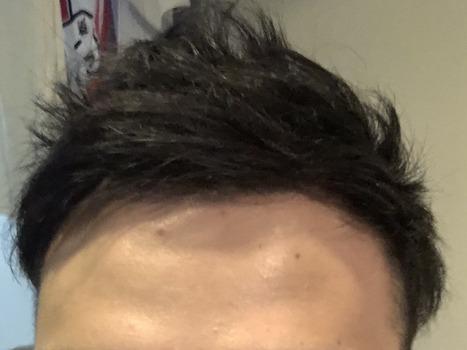 【朗報】ワイ若ハゲ、短髪になる(※画像あり)