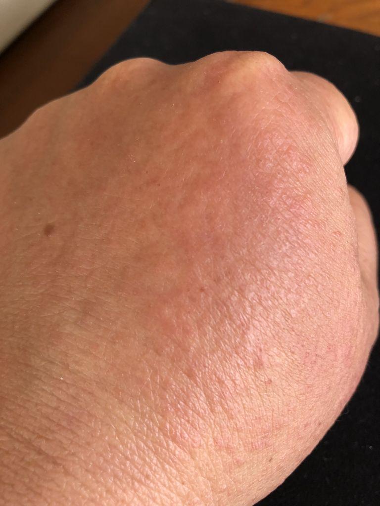 手の甲 が かゆい