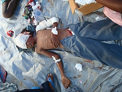 11_year_old_boy_was_injured_following_cannon_attack_at_Mullivaikkal_on_6_May_2009