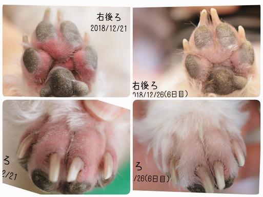 【皮膚】指間炎 ~治療6日目経過~