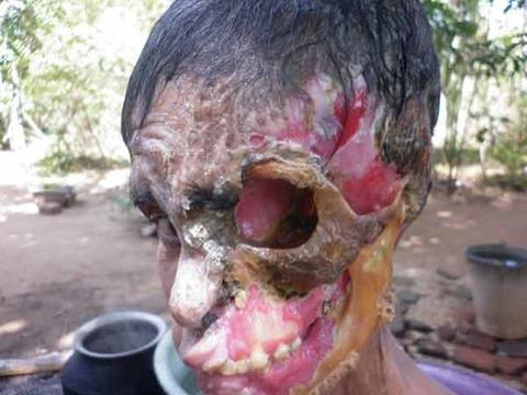 Anus flesh eating special