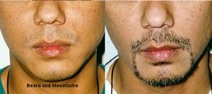 ヒゲ・顎ヒゲの植毛