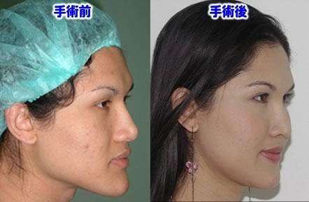 顔の女性化術前術後の写真