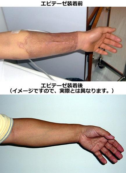 前腕皮弁法術後のエピテーゼ装着イメージ