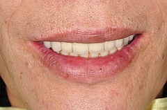 審美性回復 (Esthetic recovery)に関して:再び仮歯期間が長かった患者さん