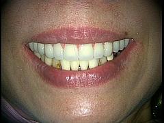 笑顔への工夫:スマイルラインの重要性と難しさ 1
