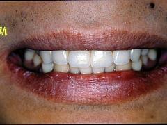 栃木佐野市での古賀チュートリアル(個別指導):単独歯欠損への対応