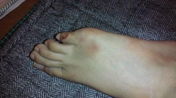 た 痛い の 小指 ぶつけ 足