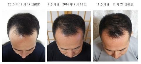 11か月目 頭皮ケアで頭の形も変わってくる