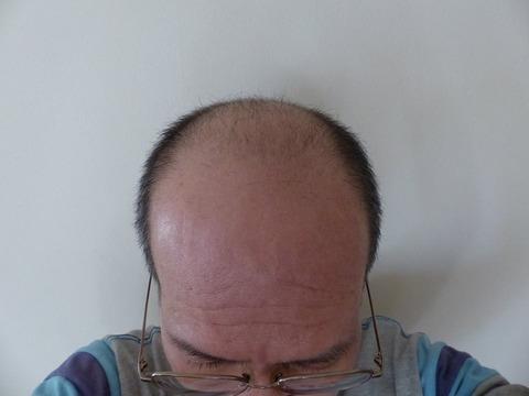 Oさま 20170207 正面頭頂部