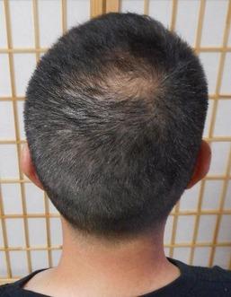 正7か月 後頭部