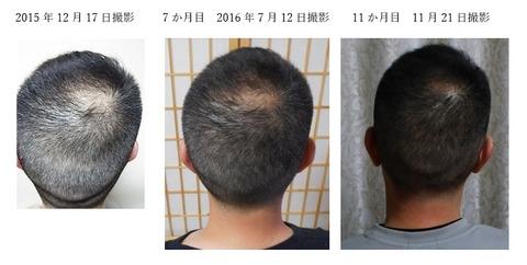 11か月経過 頭皮ケアで頭の形も変わる