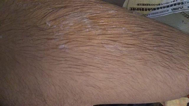 太ももの毛を銀色に染めようとした結果www
