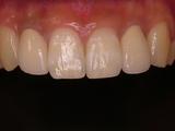 保険前歯2