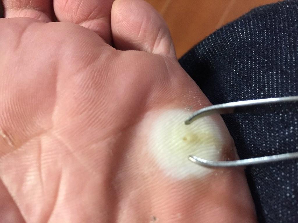 イボコロリで魚の目を自宅治療してみた【簡単】